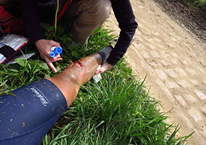 Fran Ventoso injury in the paris to roubaix race